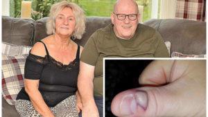 Obgryzanie paznokci doprowadziło do sepsy
