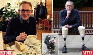 Mężczyzna stracił nos i dwie nogi po ciężkiej walce z sepsą