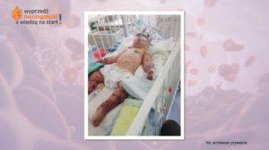 Jak może przebiegać meningokowa sepsa piorunująca? – historia Kacpra