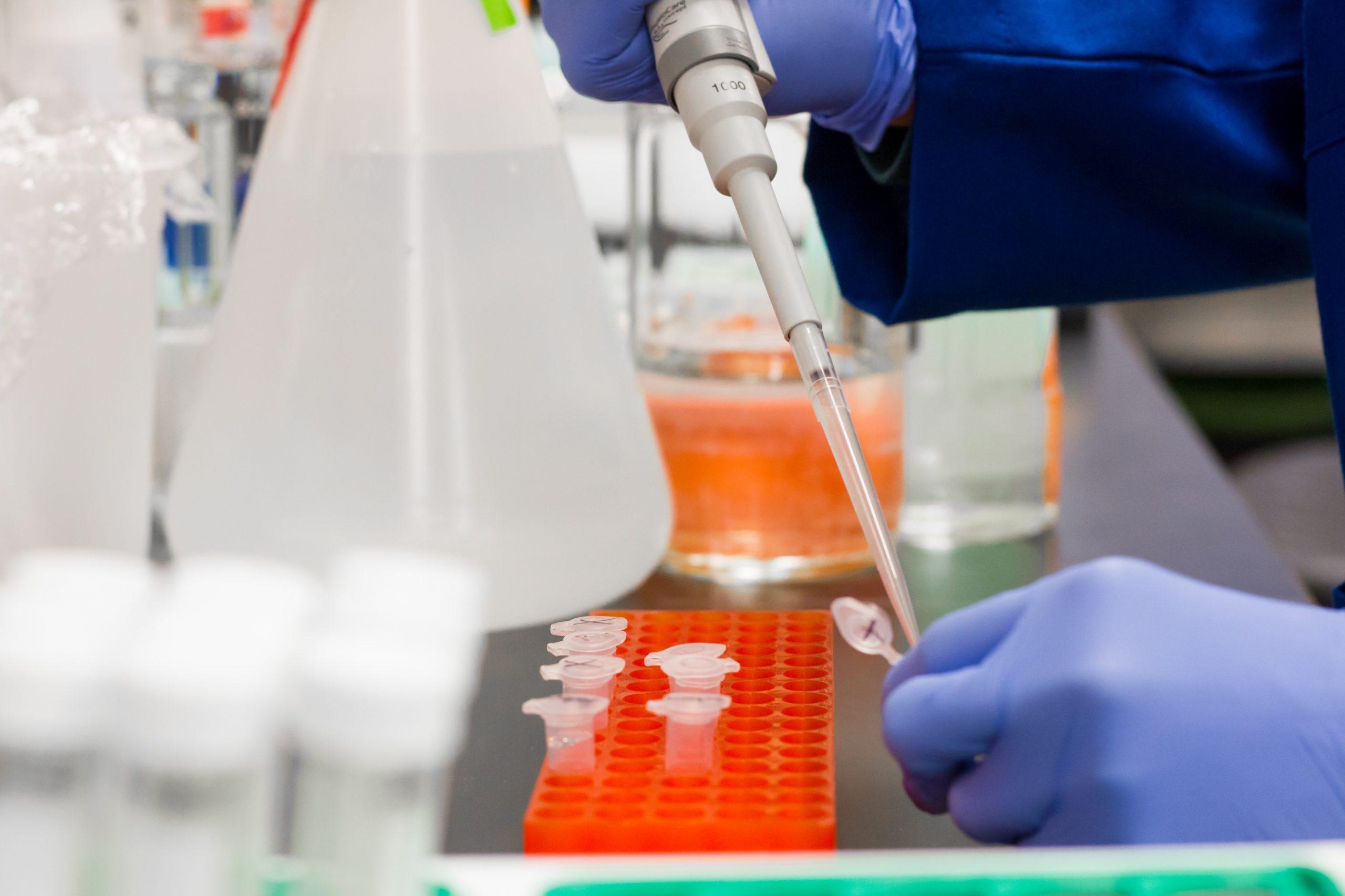 Badanie kliniczne skuteczności kwasu Alfa-liponowego w COVID-19